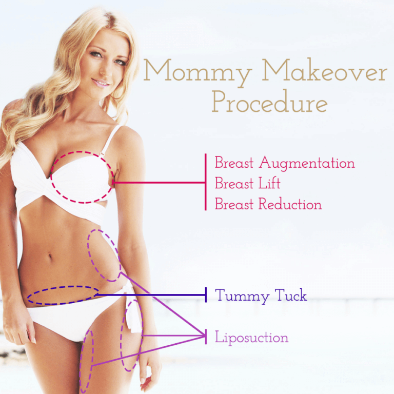 Read more about the article MOMMY MAKEOVER